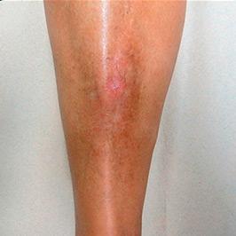 Casos clínicos de ulceras