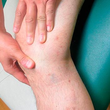 Caso clínico: tratamiento con láser y microcirugía