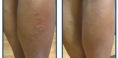 Escleorosis y Ulcera Varicosa